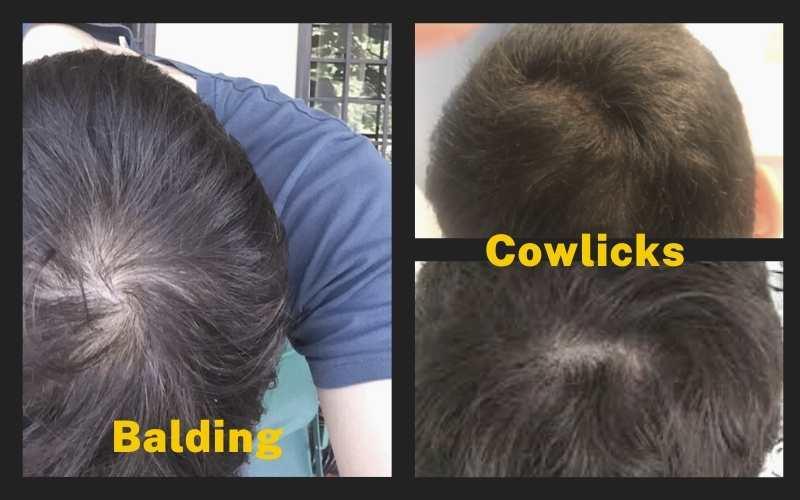 Cowlicks vs Balding