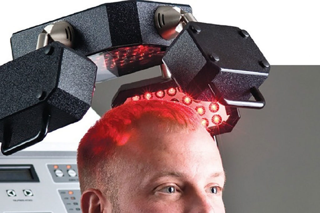 Low-Light Laser Therapy (LLLT) Hair Loss Treatment