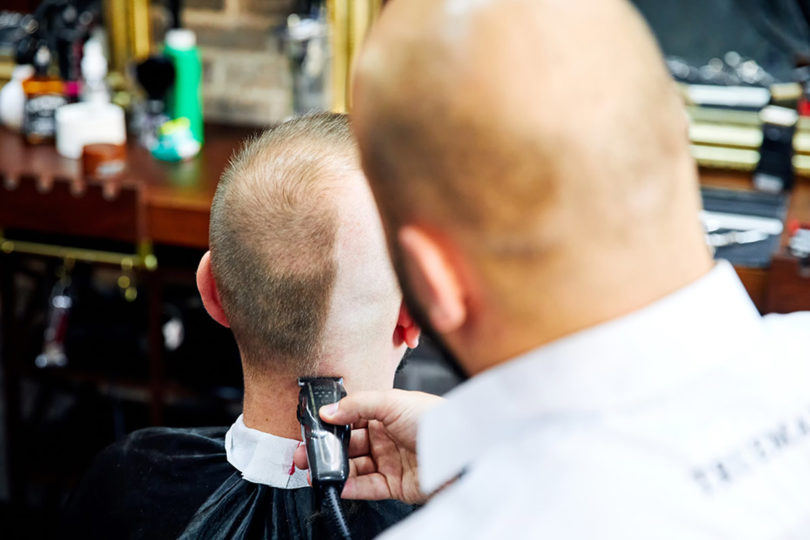 Hair Loss Solution - Shave Your Head
