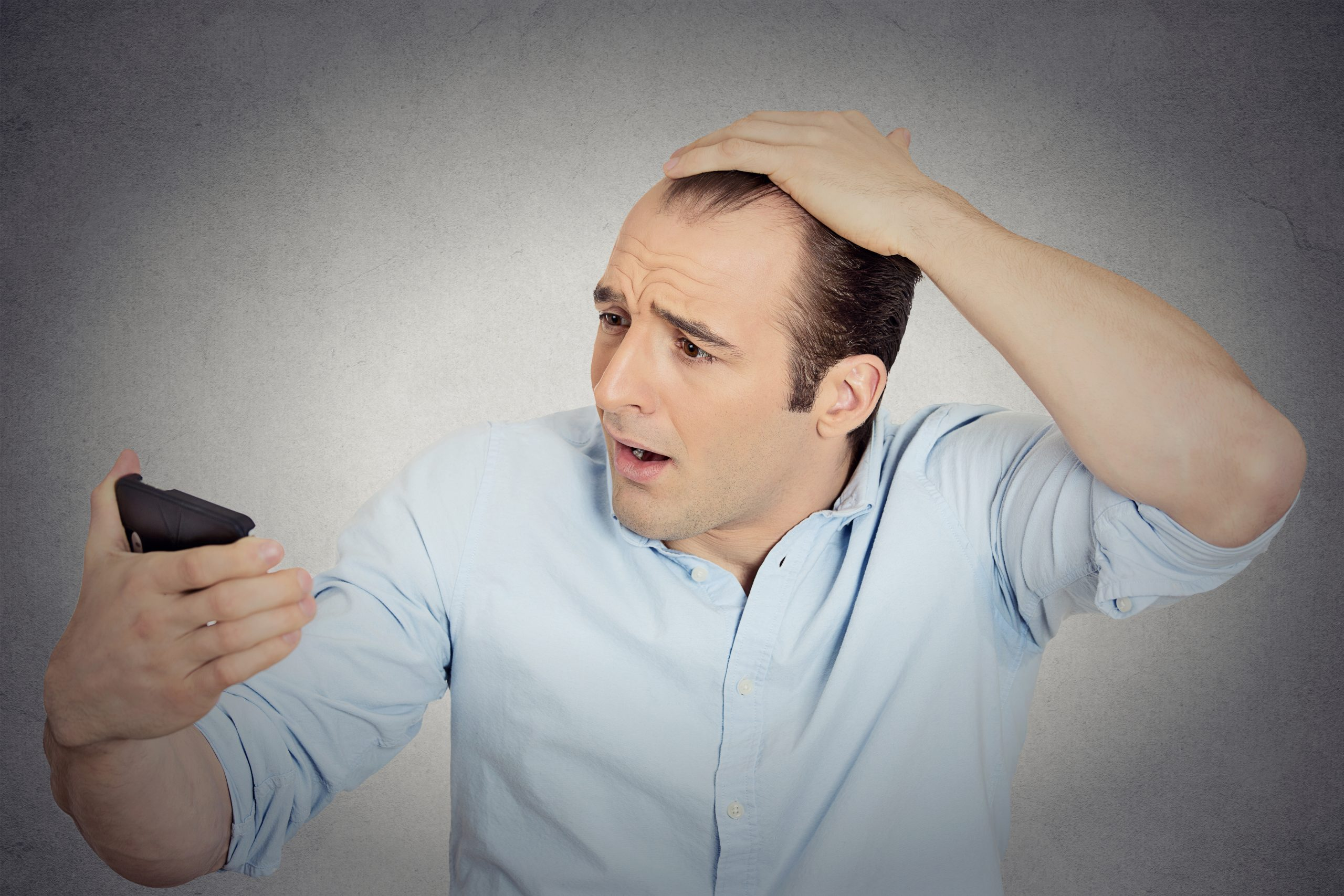 Struggling to grow hair causes more stress