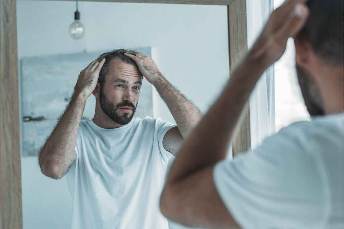 What Causes Mens Hair Loss Baldness