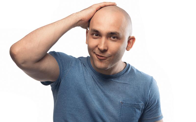 Acceptance Hair Loss - The Bald Company (1)