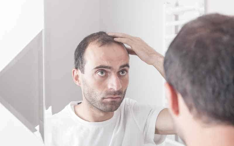 Do women like bald guys - hair loss