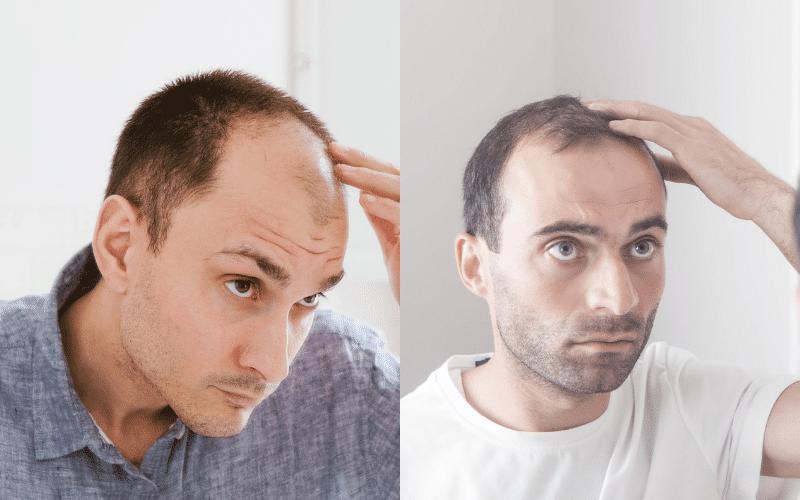 Hair Loss Denial - The Bald Company