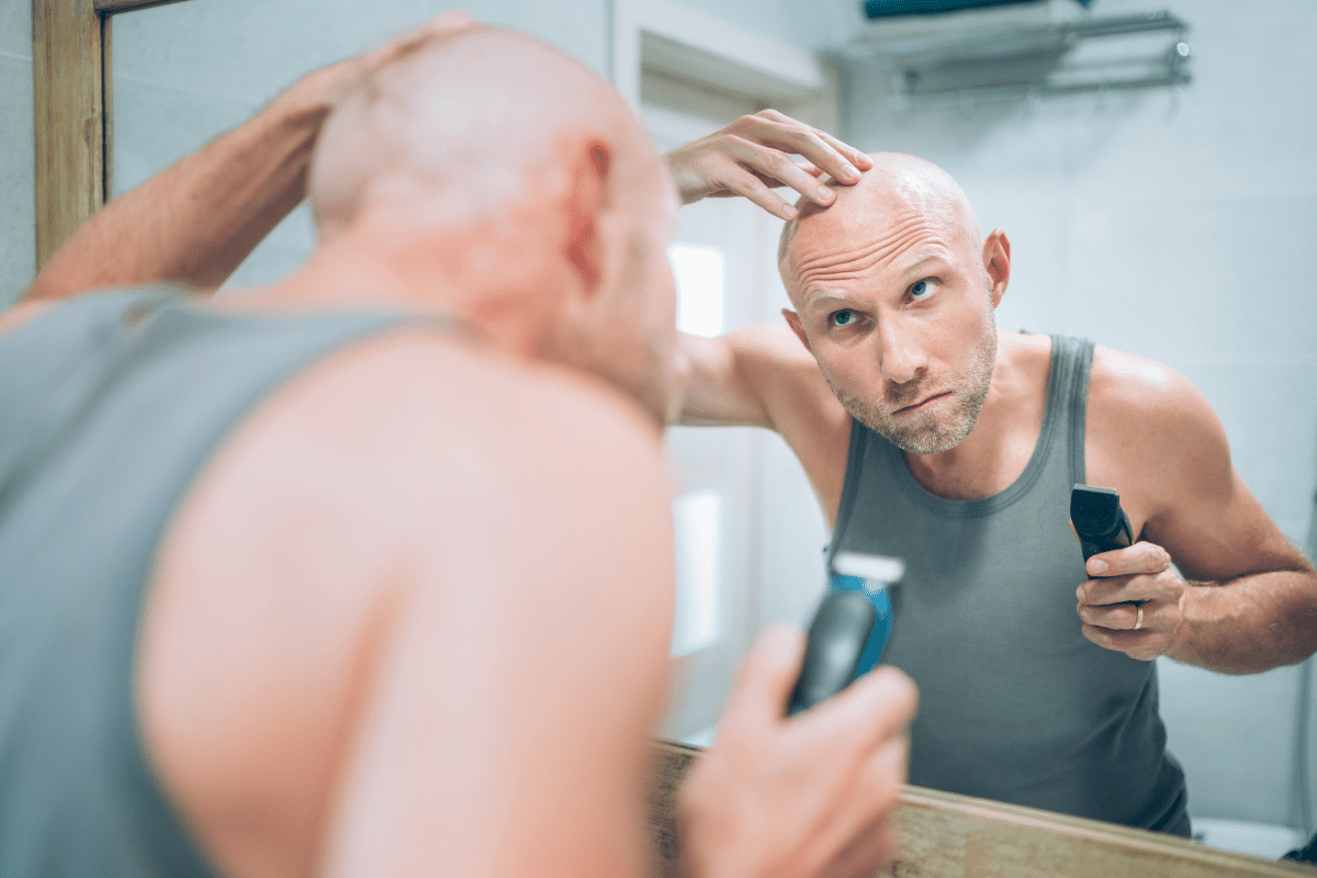 Hair-Loss-Scale-When-To-Shave-Your-Head-Hair-Loss