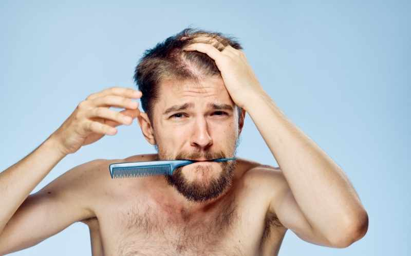 losing hair in your 20s