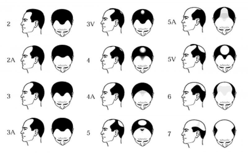 The Norwood Scale - The Bald Company