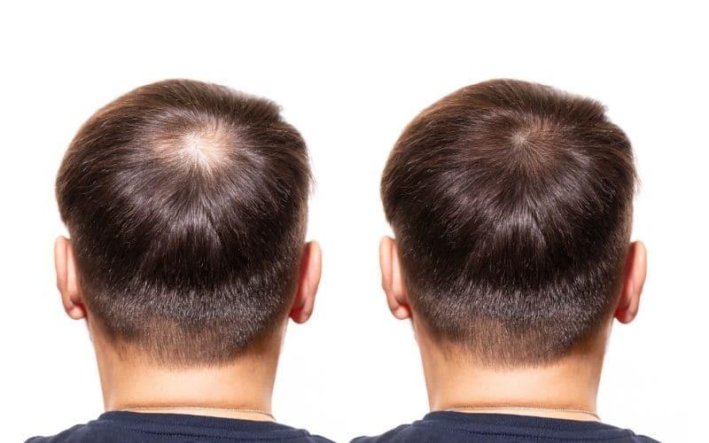 Cowlick or Balding Crown