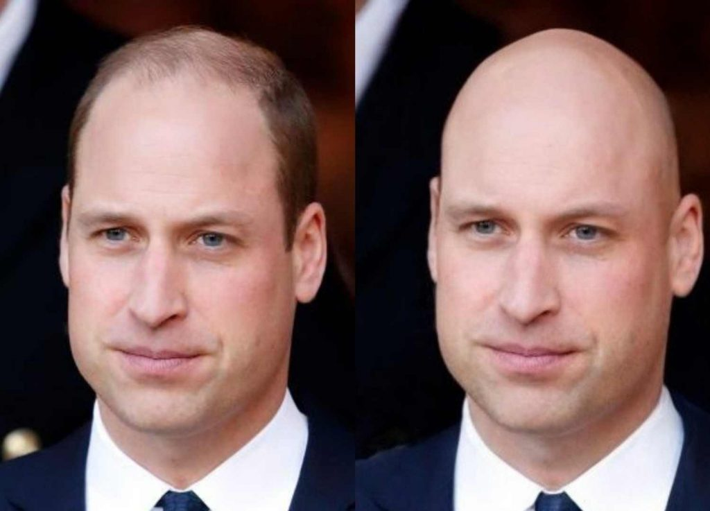 Is There An App - What Would I look Like Bald