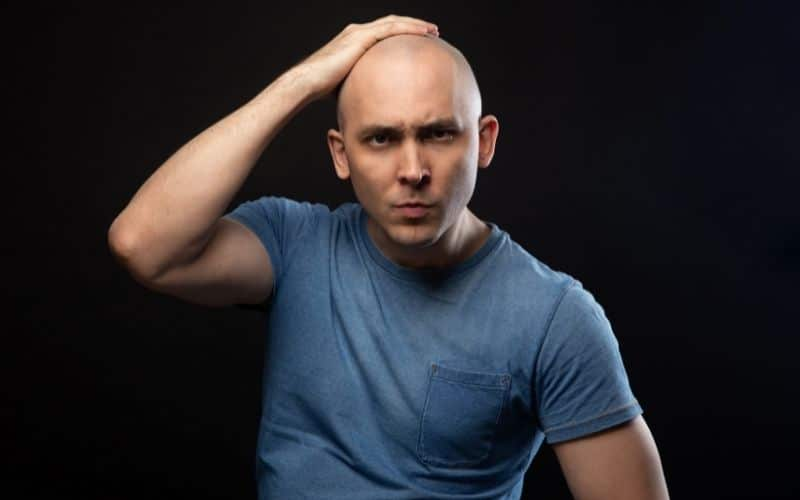 what can you do when you're going bald