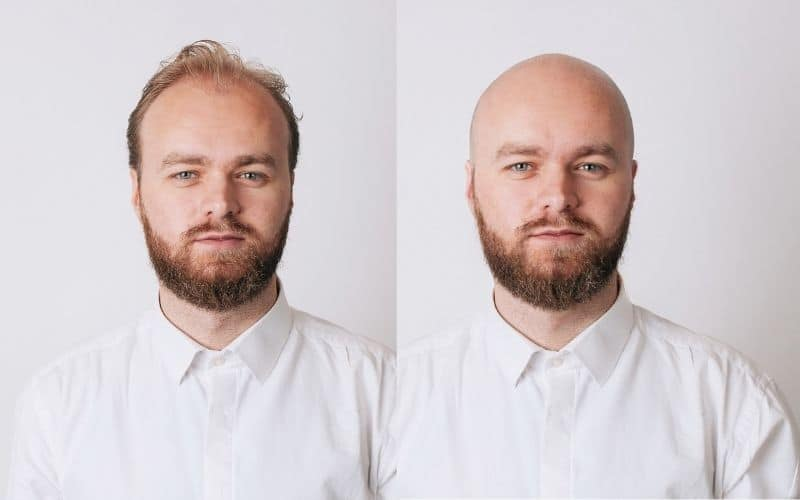 What-Would-I-Look-Like-Bald-Editor