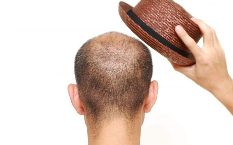 bald-man-hat-hair-loss-myths-bald-cause-baldness