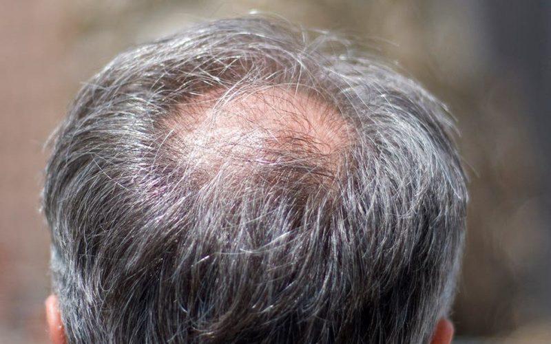 bald patch vs cowlick