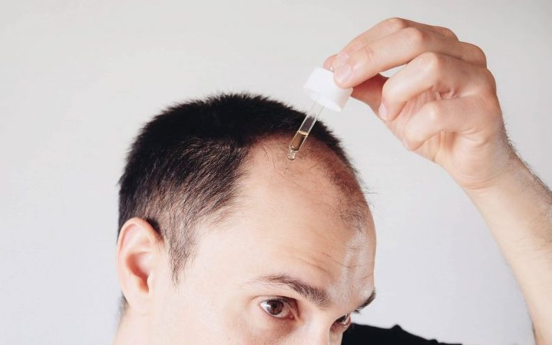 bald-man-hair-products-will-they-make-me-lose-my-hair-loss-causes