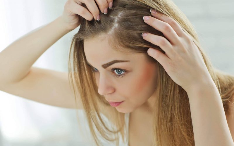 female-patterned-baldness-hair-thinning-are-only-men-affected-by-hair-loss