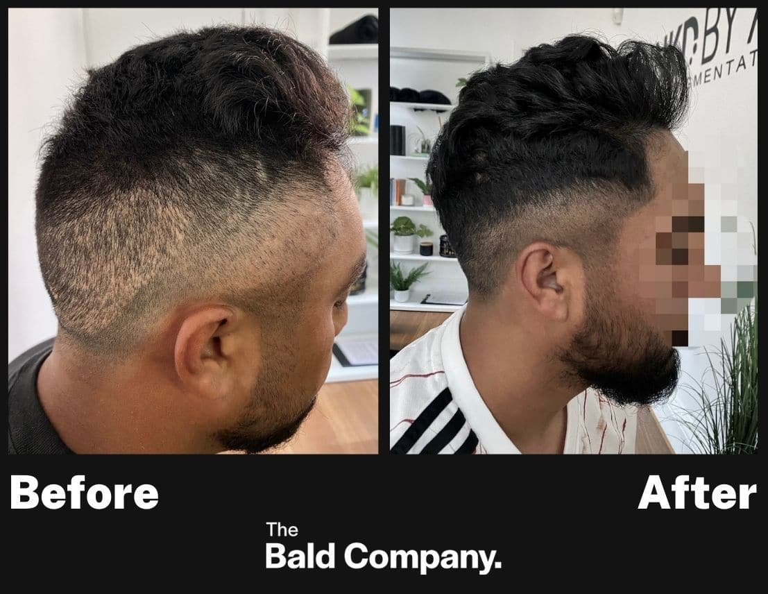 Before after scar coverage hair tattoo hair thinning INKD by AJ Melbourne