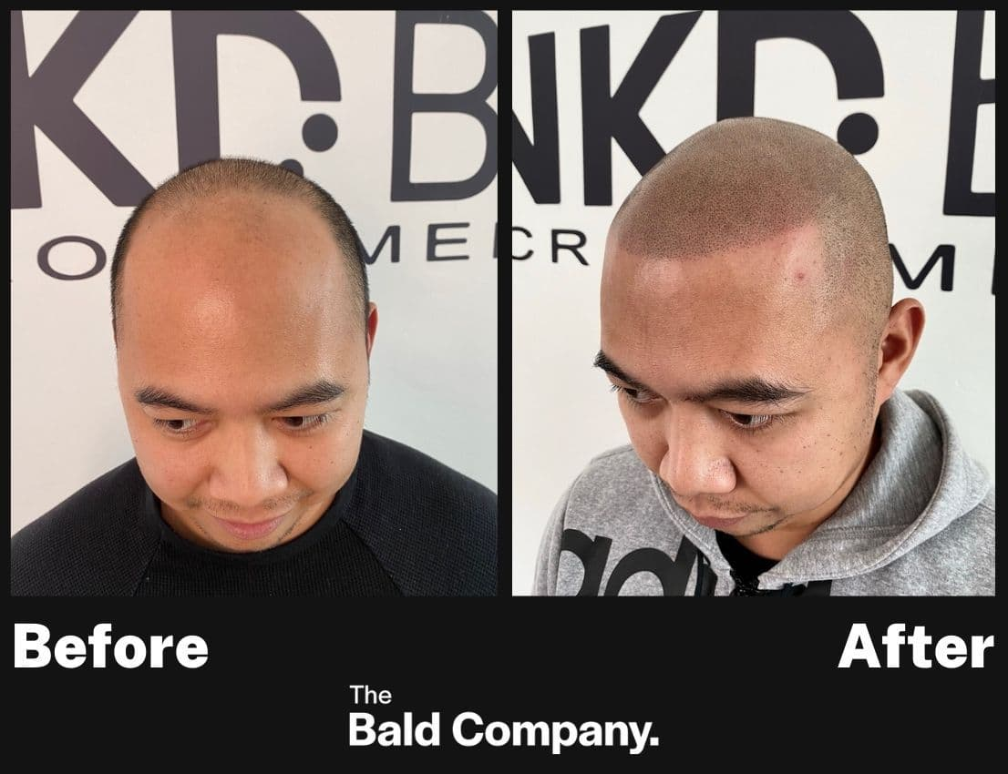 Before and after example scalp micro-pigmentation INKD by AJ Melbourne