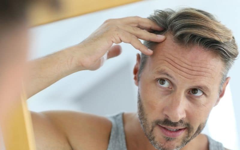 How-Much-Hair-Loss-Is-Normal