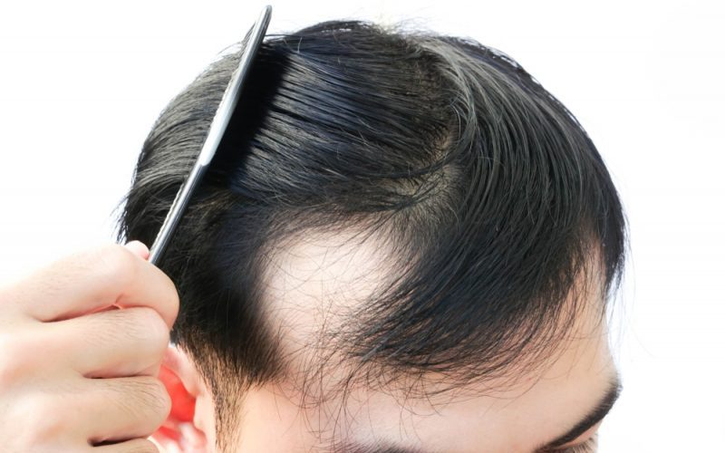 brushing hair loss how much is normal