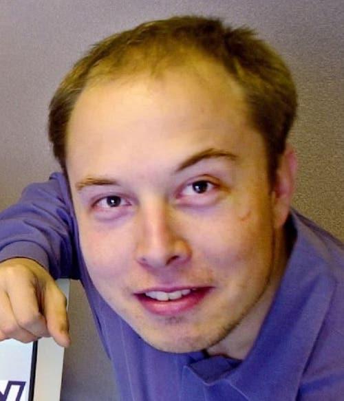 elon-musk-balding-hair-loss
