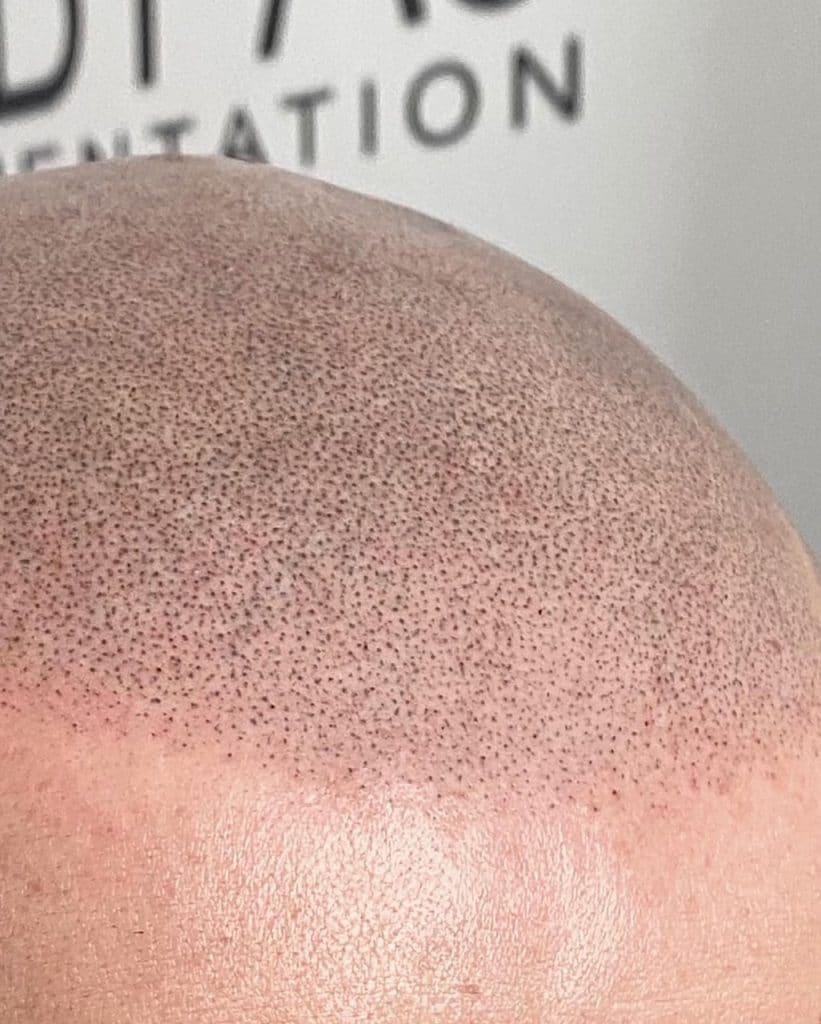 how scalp micro-pigmentation works