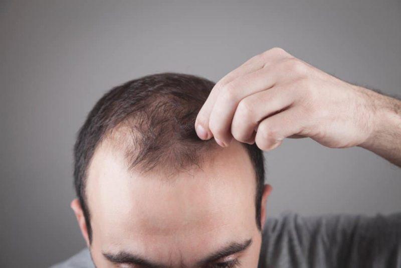going bald what do I do?
