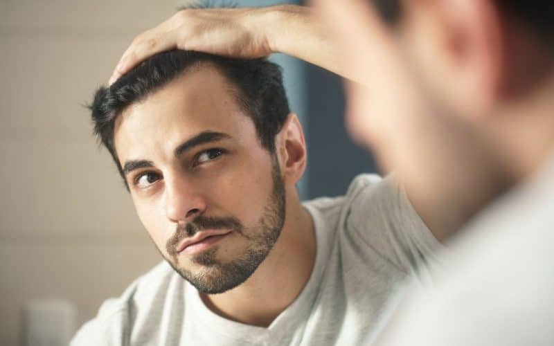 young guy worried about hair loss