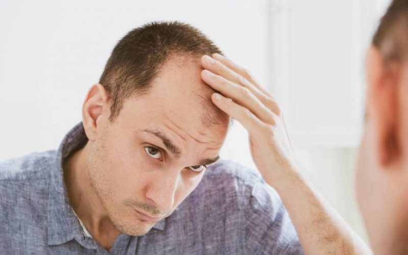 going bald men and what you can do about it