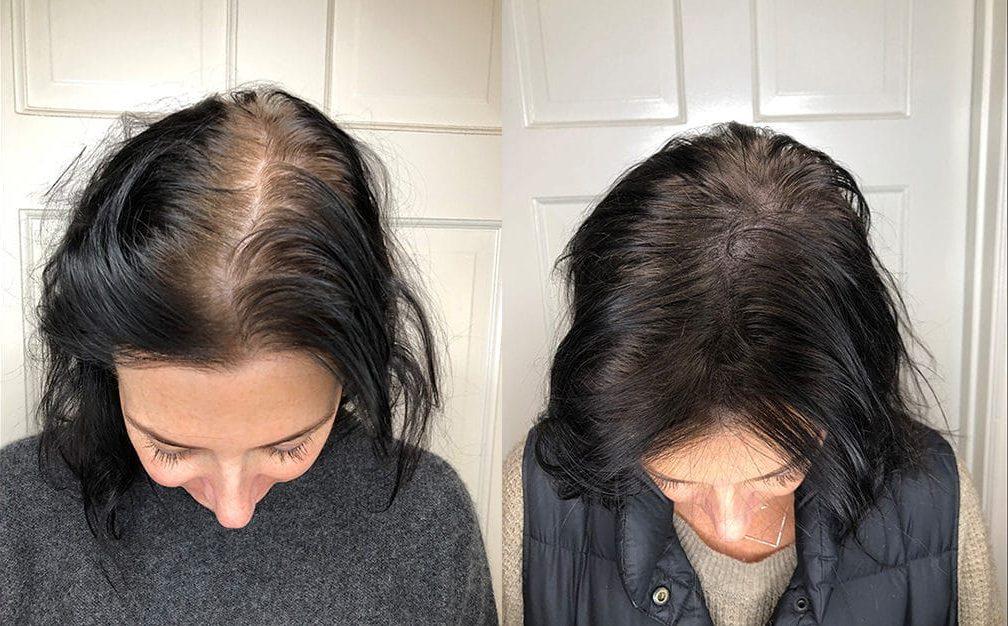 hair tattoo scalp micropigmentation women