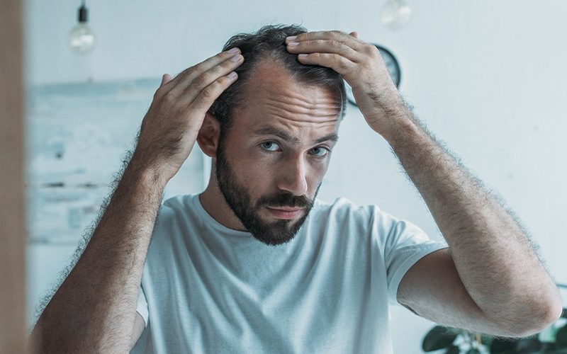 hairloss treatments balding best options solutions