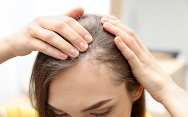 what causes female pattern baldness
