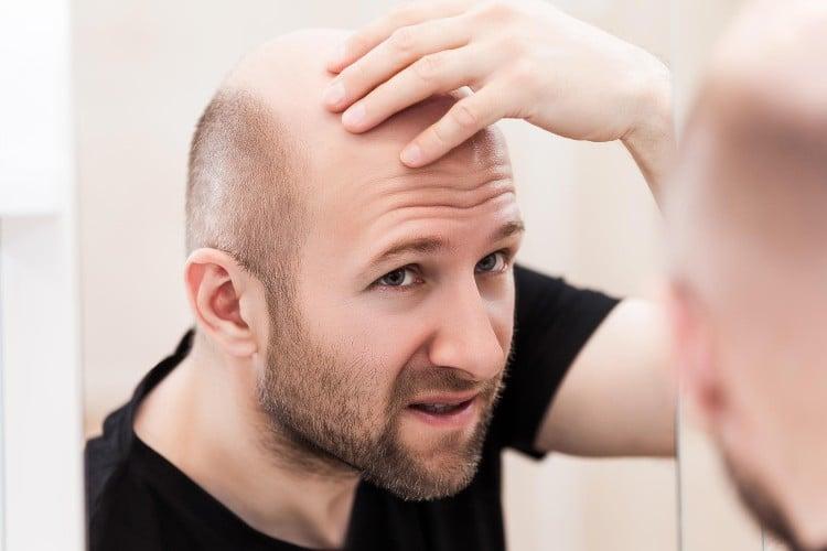 bald man checking for dandruff