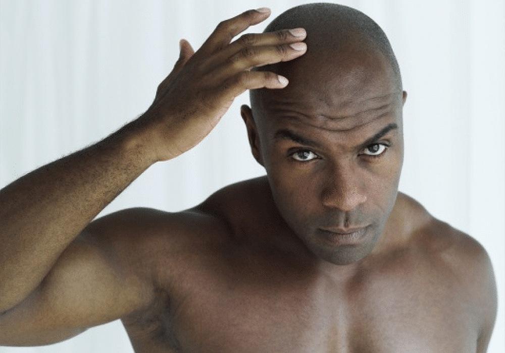 shampoo for bald men haircare hair loss